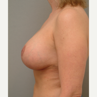 25-34 year old woman treated with Breast Implant Revision after 3732716