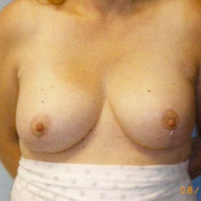 Breast Reduction after 1605012