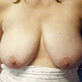 Breast Reduction before 1605012