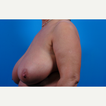 55-64 year old woman treated with Breast Reduction before 3621651