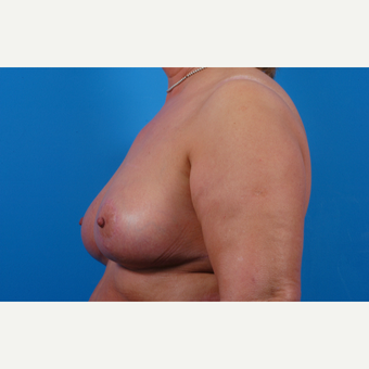 55-64 year old woman treated with Breast Reduction after 3621651