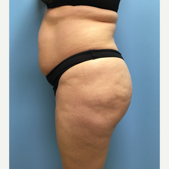 39 year-old woman treated with Lipo 360, Tummy Tuck, and Brazilian Butt Lift. before 3065268