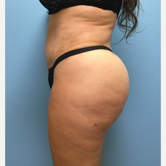 39 year-old woman treated with Lipo 360, Tummy Tuck, and Brazilian Butt Lift. after 3065268