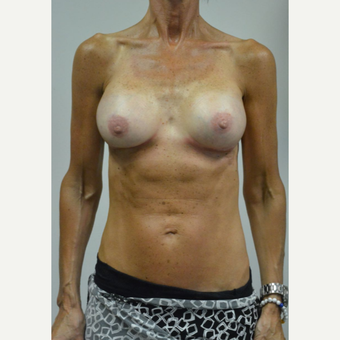 55-64 year old woman treated with Breast Augmentation after 3054965