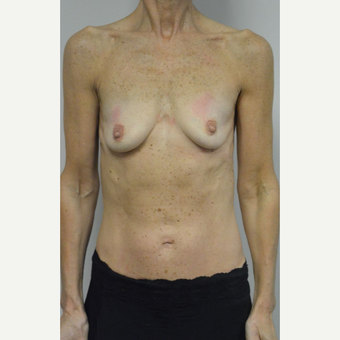 55-64 year old woman treated with Breast Augmentation before 3054965