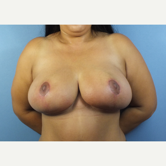 35-44 year old woman treated with Breast Reduction after 3124149