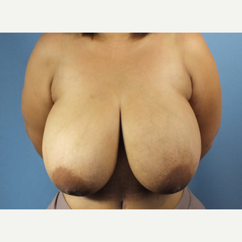 35-44 year old woman treated with Breast Reduction before 3124149