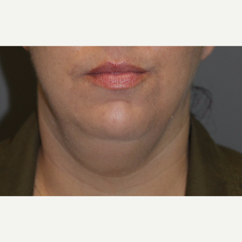 35-44 year old woman treated with Kybella before 3147370