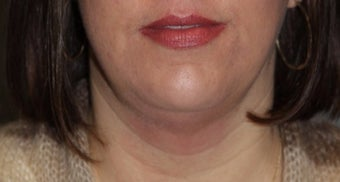 35-44 year old woman treated with Kybella after 3147370