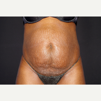 35-44 year old woman treated with Liposuction and Abdominoplasty before 3644698