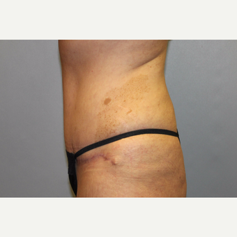 35-44 year old woman treated with Tummy Tuck after 3529107