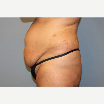 35-44 year old woman treated with Tummy Tuck before 3529107