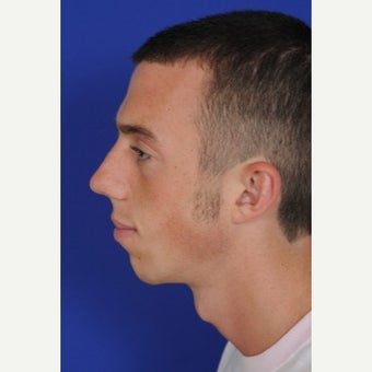25-34 year old man treated with Chin Implant before 1695374