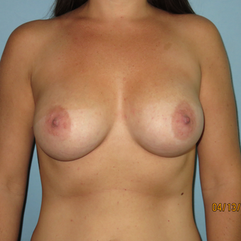 25-34 year old woman treated with Breast Augmentation after 3099491