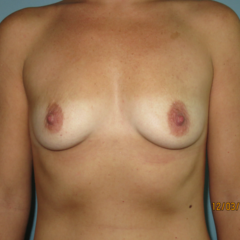 25-34 year old woman treated with Breast Augmentation before 3099491