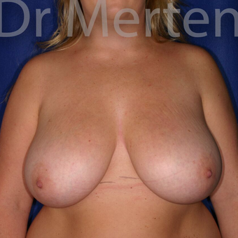 Breast Reduction before 3648482