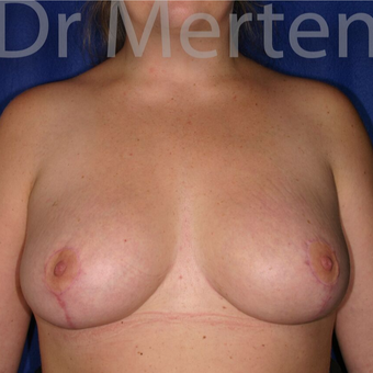 Breast Reduction after 3648482