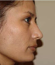 Rhinoplasty after 172973