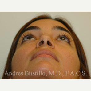 31 year old woman treated with Rhinoplasty before 3460857