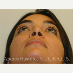 31 year old woman treated with Rhinoplasty after 3460857