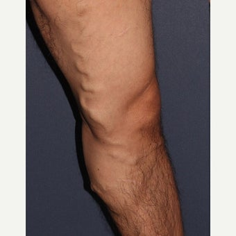 35-44 year old man treated with Sclerotherapy before 1626281