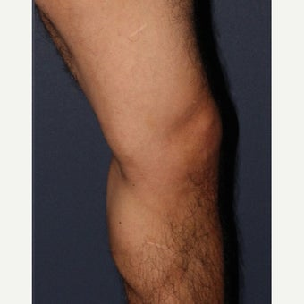 35-44 year old man treated with Sclerotherapy after 1626281