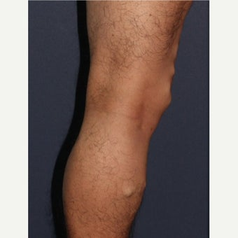 35-44 year old man treated with Sclerotherapy 1626281