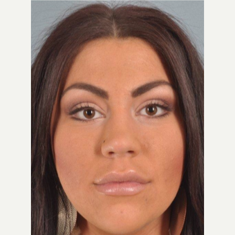 25-34 year old woman treated with Restylane after 3624672