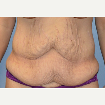 35-44 year old woman treated with Body Lift before 3167260