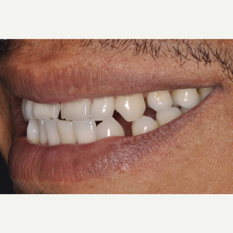 43 year old man treated with Porcelain Veneers before 3537594