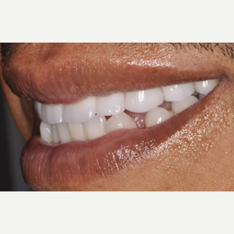 43 year old man treated with Porcelain Veneers after 3537594