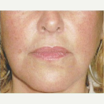 62 year old woman treated with Botox and Dermal Filler after 3055408