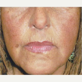 62 year old woman treated with Botox and Dermal Filler before 3055408