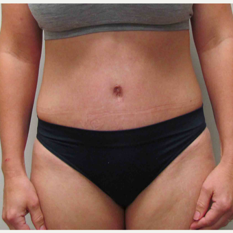 Tummy Tuck for this 36 Year Old Mother after 3005614