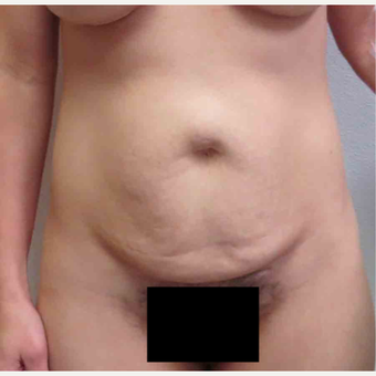Tummy Tuck for this 36 Year Old Mother before 3005614