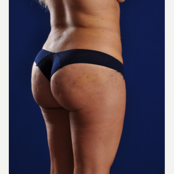 25-34 year old woman treated with Smart Lipo after 3624984