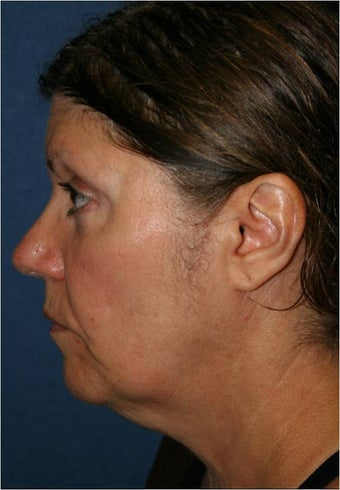 61 year old female requesting treatment for her sagging jaw line and neck before 963988