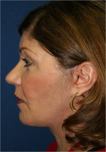 61 year old female requesting treatment for her sagging jaw line and neck after 963988