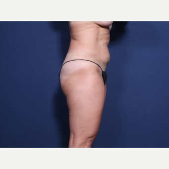 45-54 year old woman treated with Tummy Tuck (view 2 of 2) before 3246516