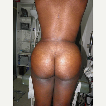 18-24 year old woman treated with Brazilian Butt Lift after 3327285