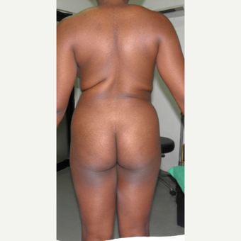 18-24 year old woman treated with Brazilian Butt Lift before 3327285
