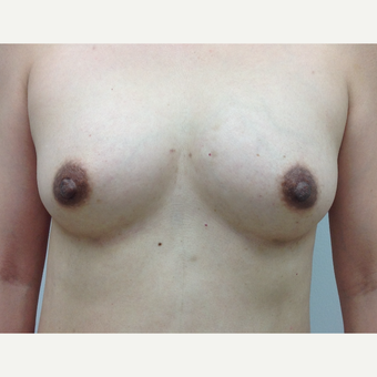 45-54 year old woman treated with Fat Transfer to her breasts after 3581951