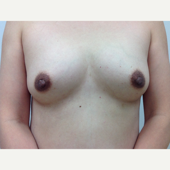 45-54 year old woman treated with Fat Transfer to her breasts before 3581951