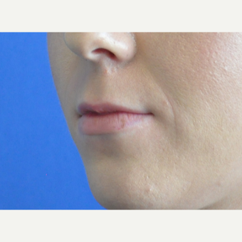 25-34 year old woman treated with Lip Augmentation before 3219357