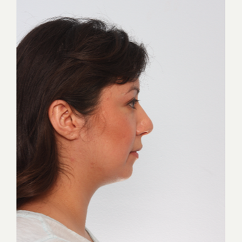 Chin Implant before 3550271