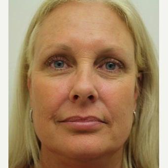 45-54 year old woman treated with Botox after 1559533