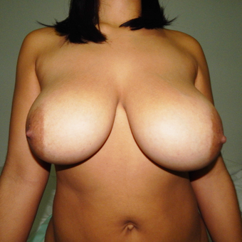 25-34 year old woman treated with Breast Reduction before 3418964
