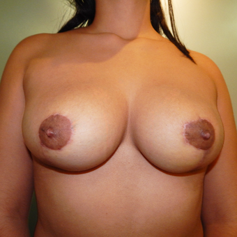 25-34 year old woman treated with Breast Reduction after 3418964