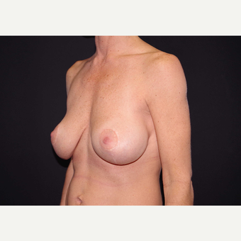 35-44 year old woman treated with Breast Implants before 3441164