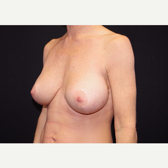 35-44 year old woman treated with Breast Implants after 3441164